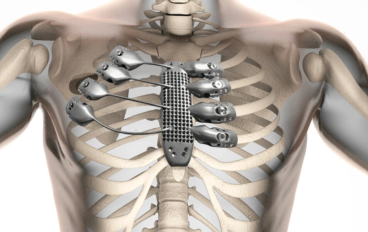 Cancer patient receives 3D printed Titanium ribs manufactured by Anatomics